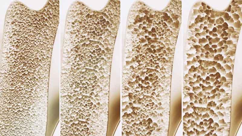 علت پوکی استخوان و داروهای درمان