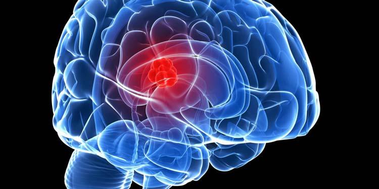 علایم تومور مغزی