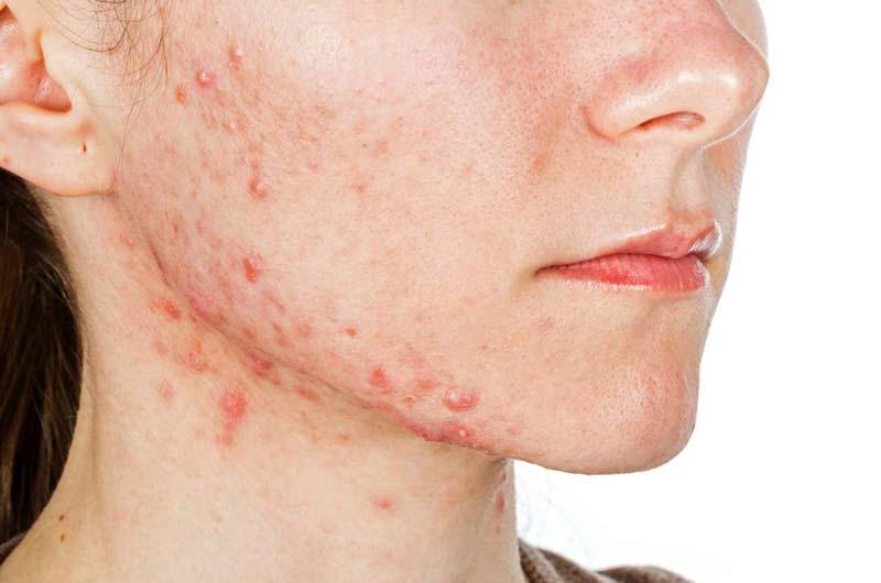 اشتباهات در درمان جوش صورت