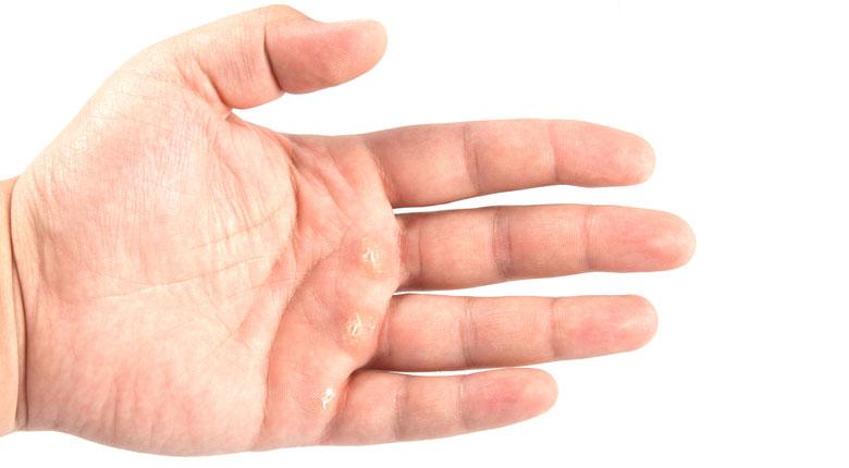 میخچه دست و انگشت