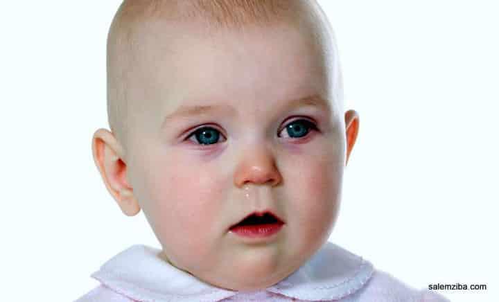 عفونت چشم نوزاد