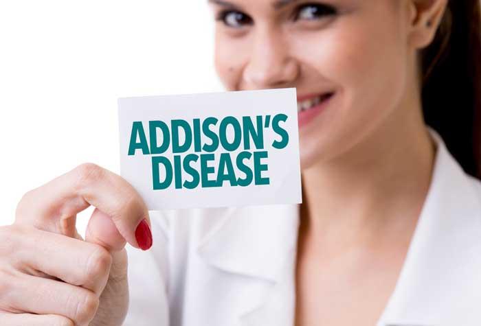 بیماری آدیسون