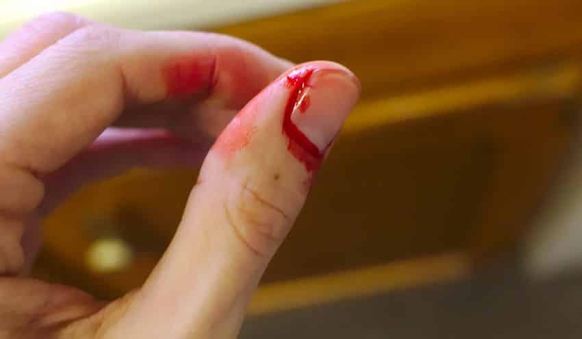 خونریزی بریدگی