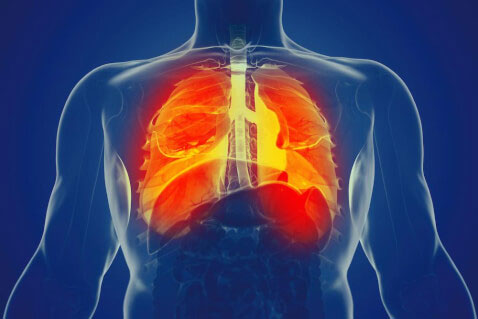 فیبروز ریه 3