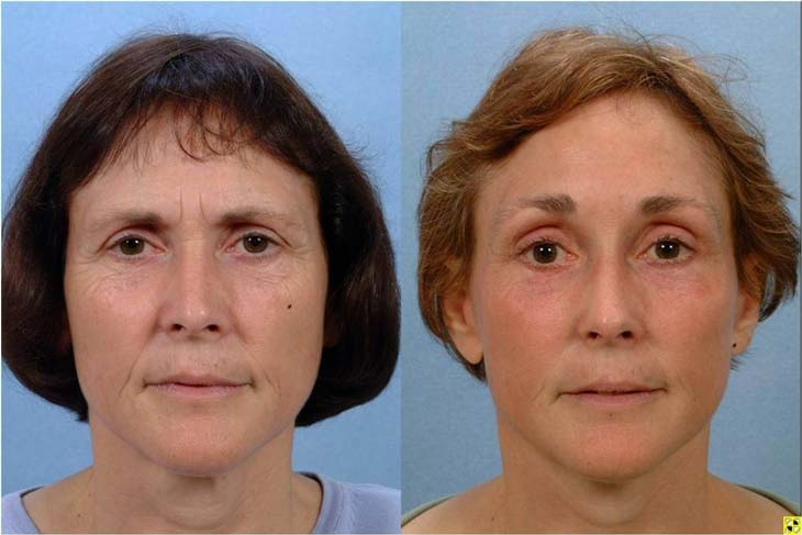 قبل و بعد از لیفت صورت