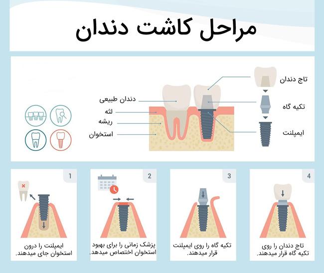 کاشت دندان (اینفوگرافی)