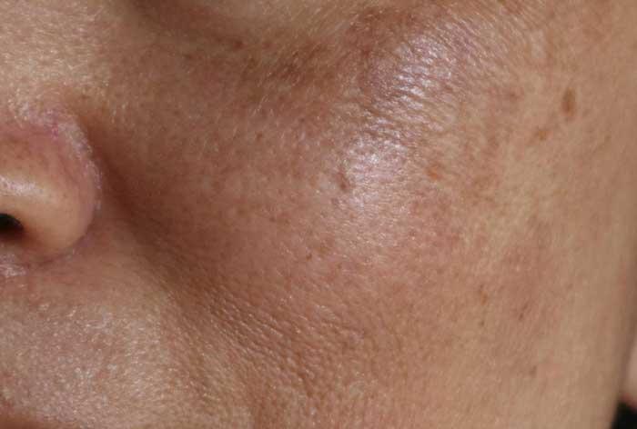 دانه قهوه ای پوست صورت