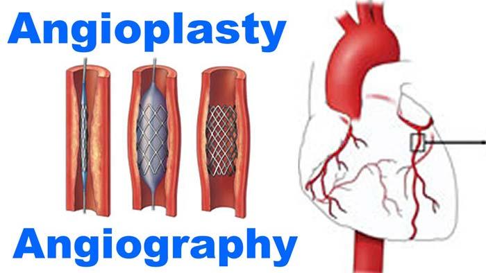 آنژیوگرافی در مقابل آنژیوپلاستی