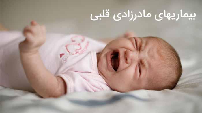 مشکل قلبی نوزاد