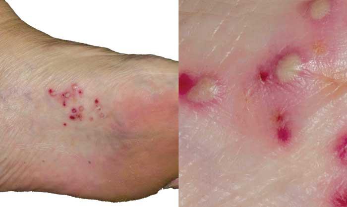 بیماری پوستی پا