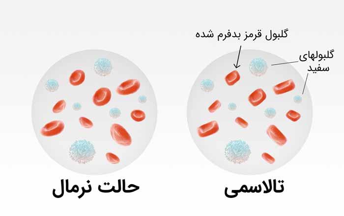 نسبت گلبول ها در تالاسمی