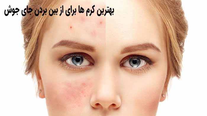 قبل و بعد از مصرف
