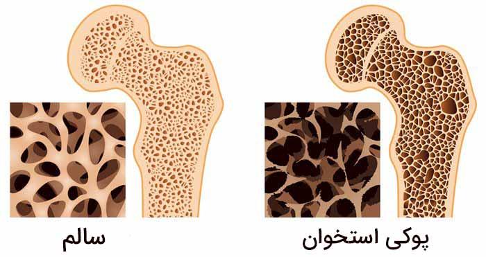 پوکی استخوان و استخوان سالم