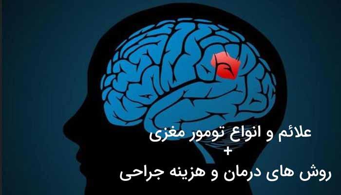 راجب تومور مغزی