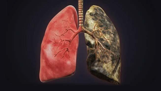 ریه سالم و سیگاری