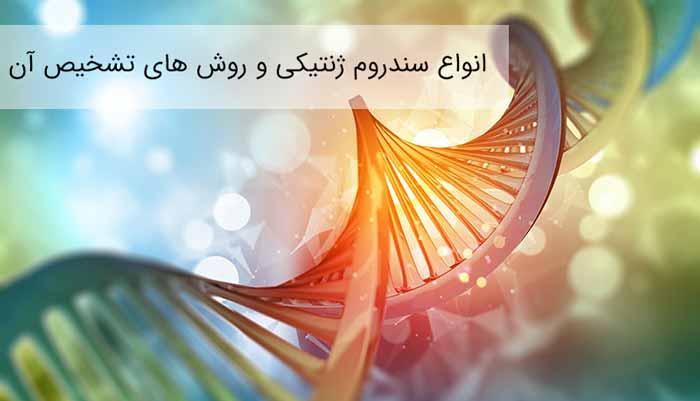 سندروم ژنتیکی