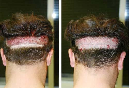 FUT-کاشت-مو